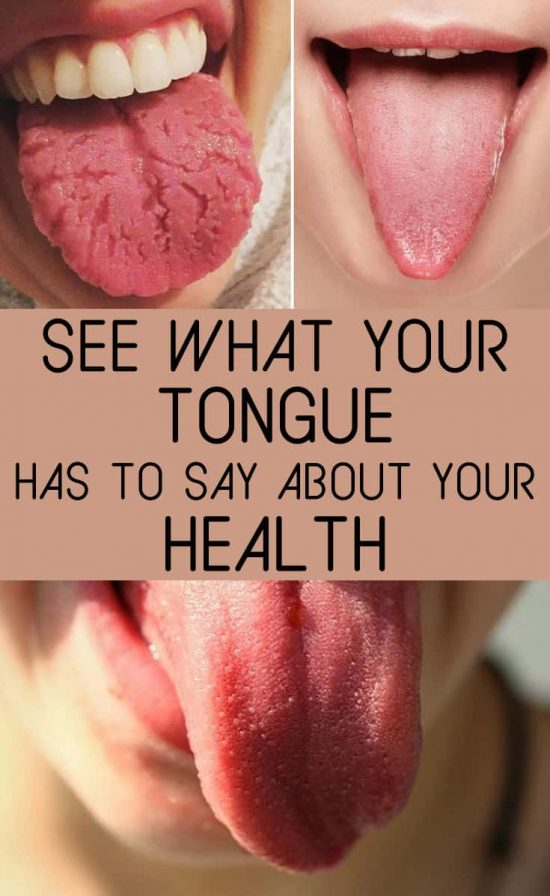 see-what-your-tongue-reveals-about-your-health