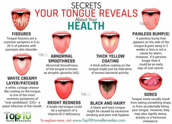 Find Out What Your Tongue Is Trying To Tell You | The WHOot