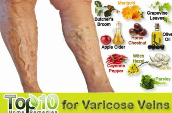 Varicose Veins Remedies