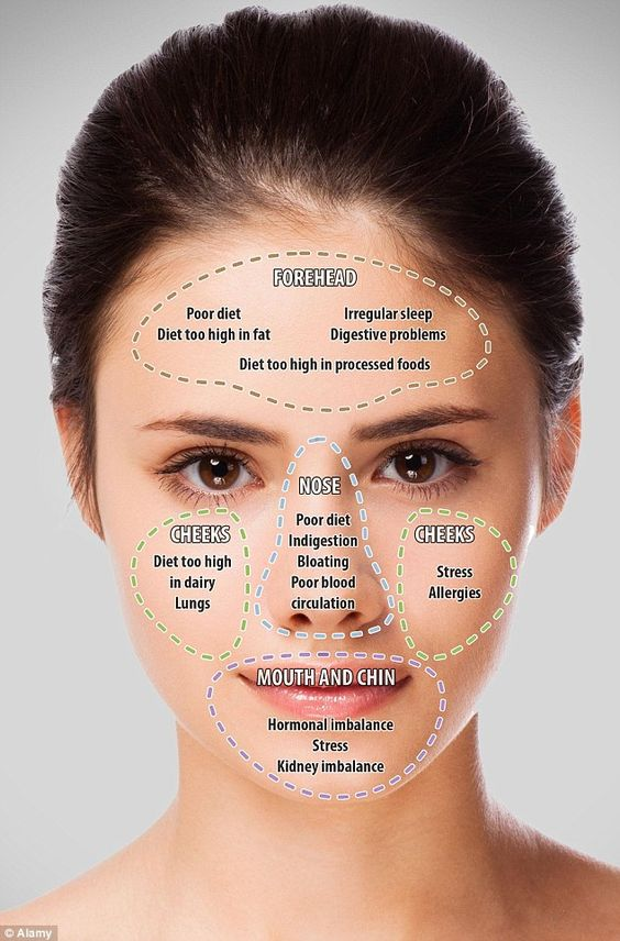 Reflexology Massage Techniques Lots Of Charts The Whoot Face Mapping Acne Face Mapping Reflexology Massage