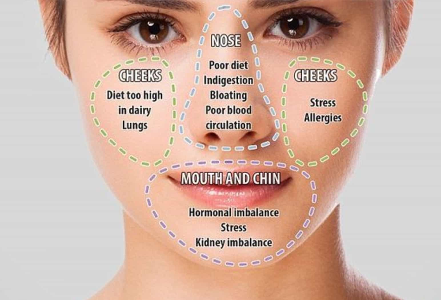 Chinese Face Mapping Skin Analysis Chart Video Instructions - Chinese face map for acne